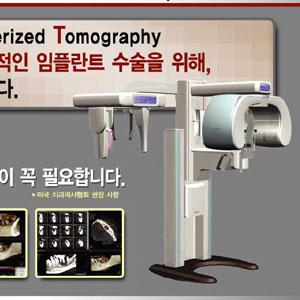 치과전용 CT 도입 진료