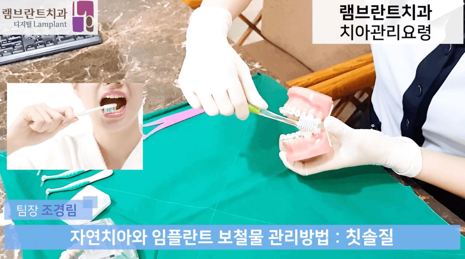 [대전치과,대전충치치료] 치아관리 요령에 대해 알아보기, 권주홍 대표원장